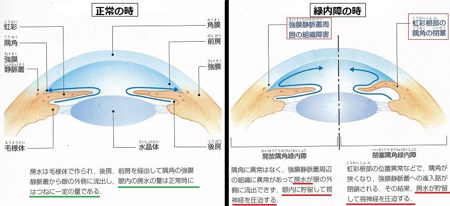 高い 眼 圧 【医師が監修】眼圧を下げる為に、絶対にやっておきたい15の緑内障対策(その1)